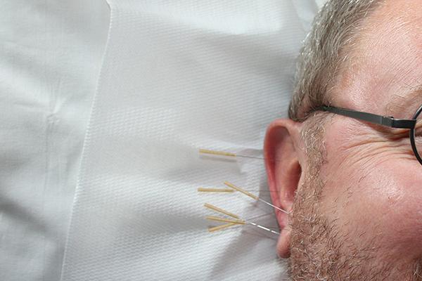 Ohrakupunktur & Akupunktur